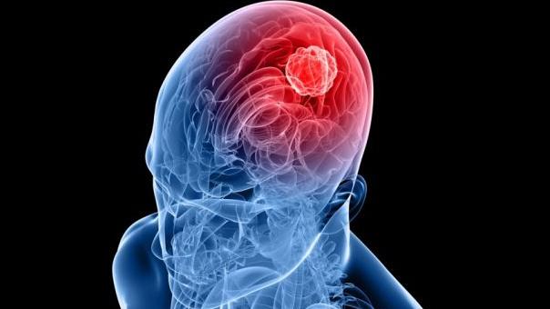 Procenat smrtnosti od moždanog udara čak 25 odsto