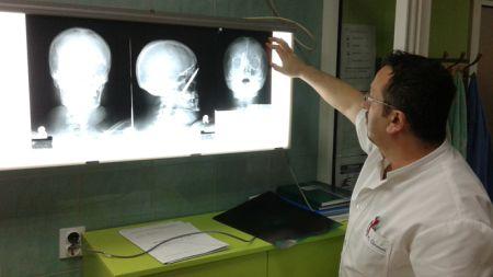 Фоча - рендгенски снимак